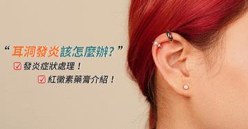 《耳洞保養》耳洞發炎症狀怎麼處理?紅黴素藥膏有用嗎?